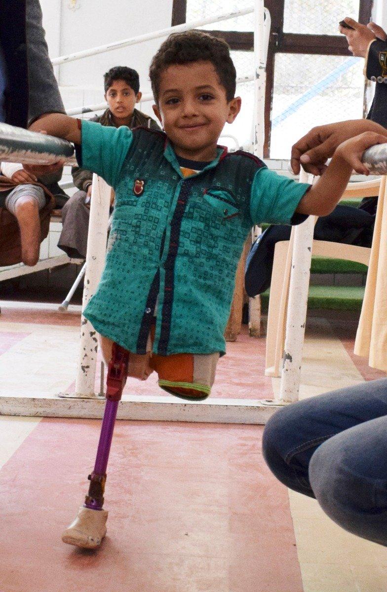 Gutt med protese